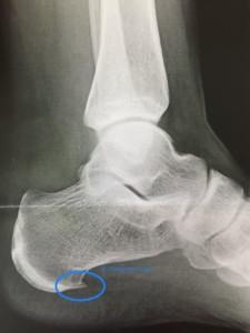 Hallux valgus, Fersenporn, Spreizfuß, Senkfuß, Mortens Neurom, Fußschmerzen, Hammerzehen, Chiropraktor-Haus Hamburg, Chiropraktor, Chiropraktik für die Füße