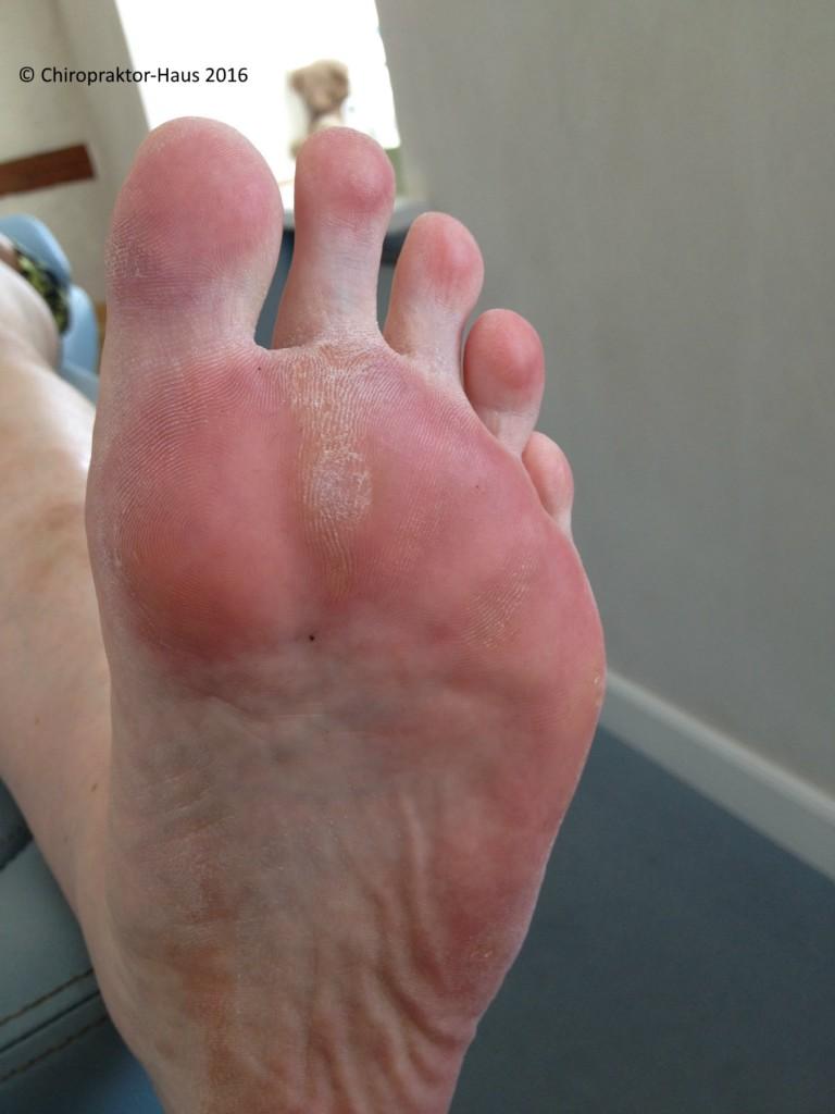 Fußschmerzen Hallux valgus Spreizfuß Chiropraktik Chiropraktor Hamburg Rückenschmerzen Kopfschmerzen Nackenschmerzen