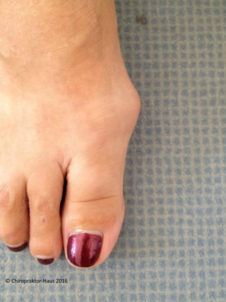Fußschmerzen Hallux valgus Spreizfuß Chiropraktik Chiropraktor Hamburg Rückenschmerzen Nackenschmerzen Kopfschmerzen
