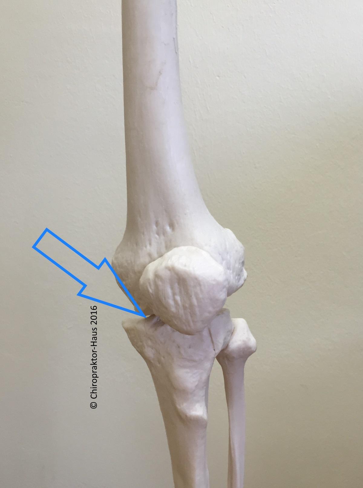 Arthrose (Knie oder Hüfte) I Chiropraktor-Haus | Chiropraktor-Haus ...