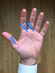 Chiropraktik, Hand, Karpaltunnelsyndrom, Chiropraktor, Chiropraktor-Haus, Hamburg