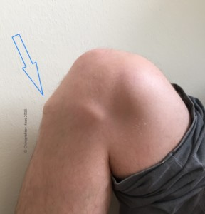 Chiropraktik, Chiropraktor, Chiropraktor-Haus, Knieschmerzen